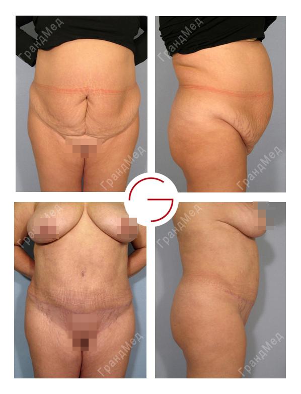 клиника по увеличение грудных желез киев