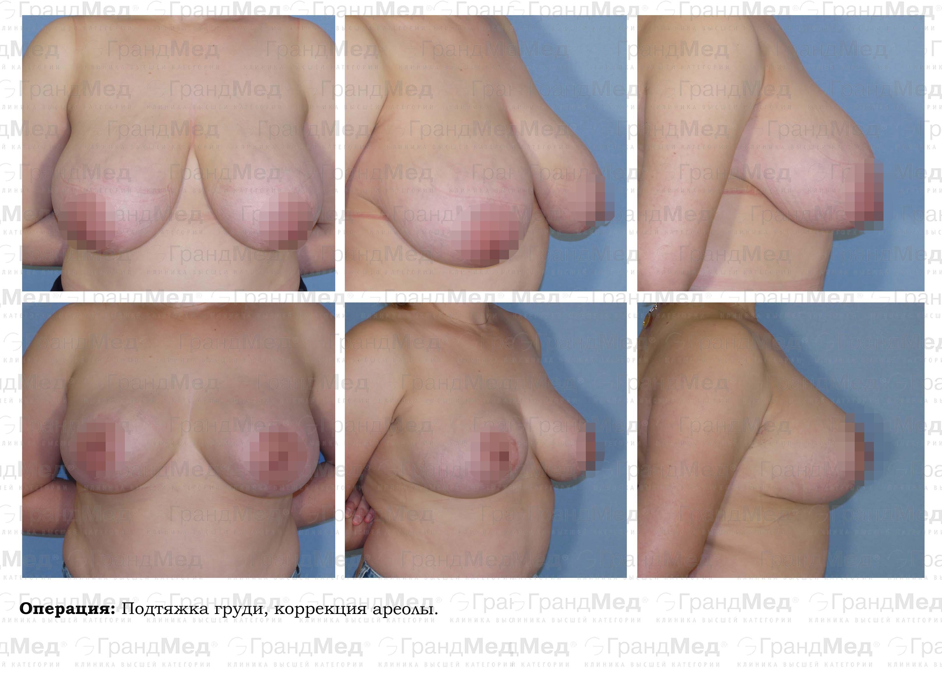 Увеличение груди крем bust cream spa отзывы