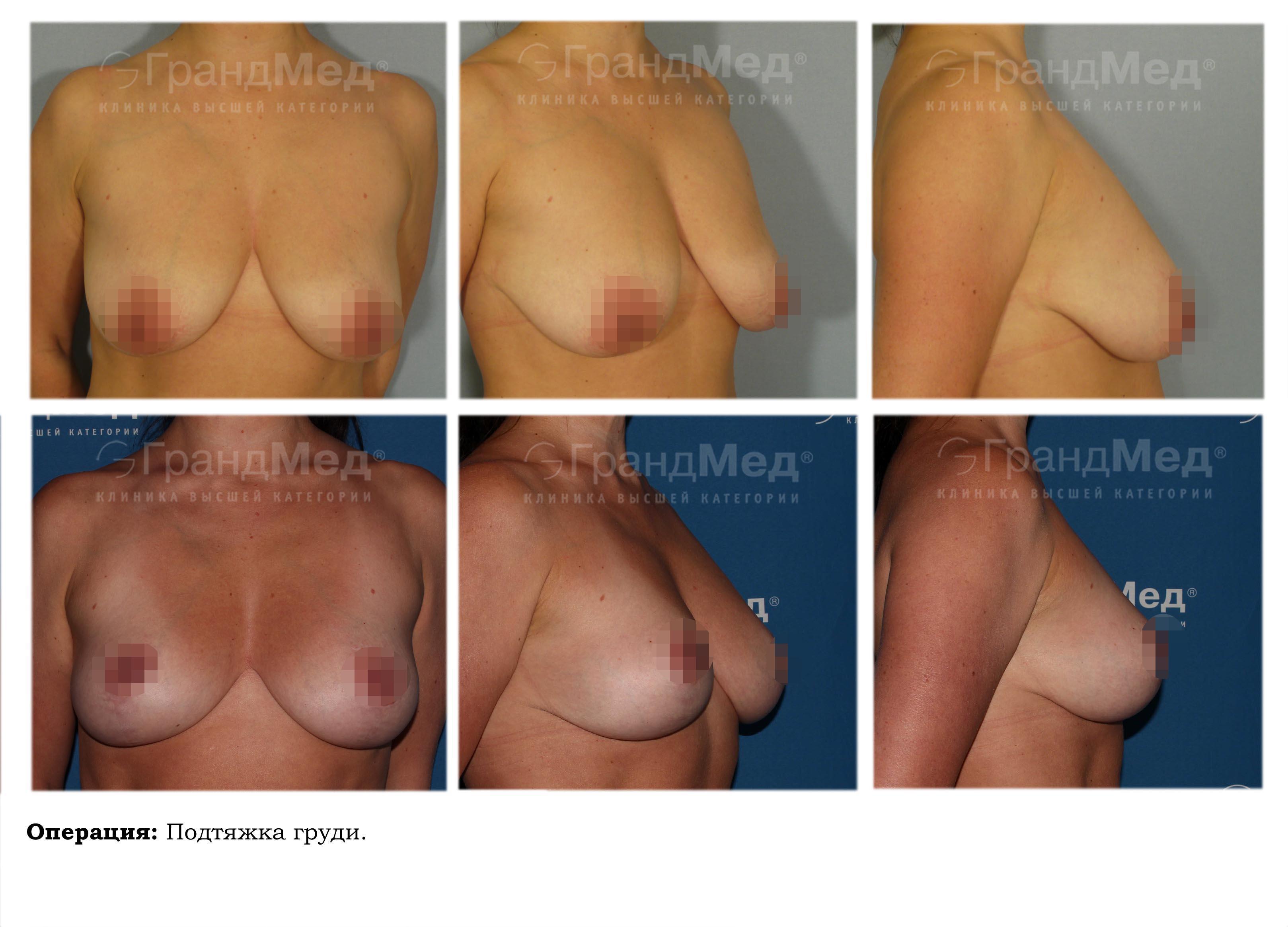 Увеличение груди гормональными препаратами