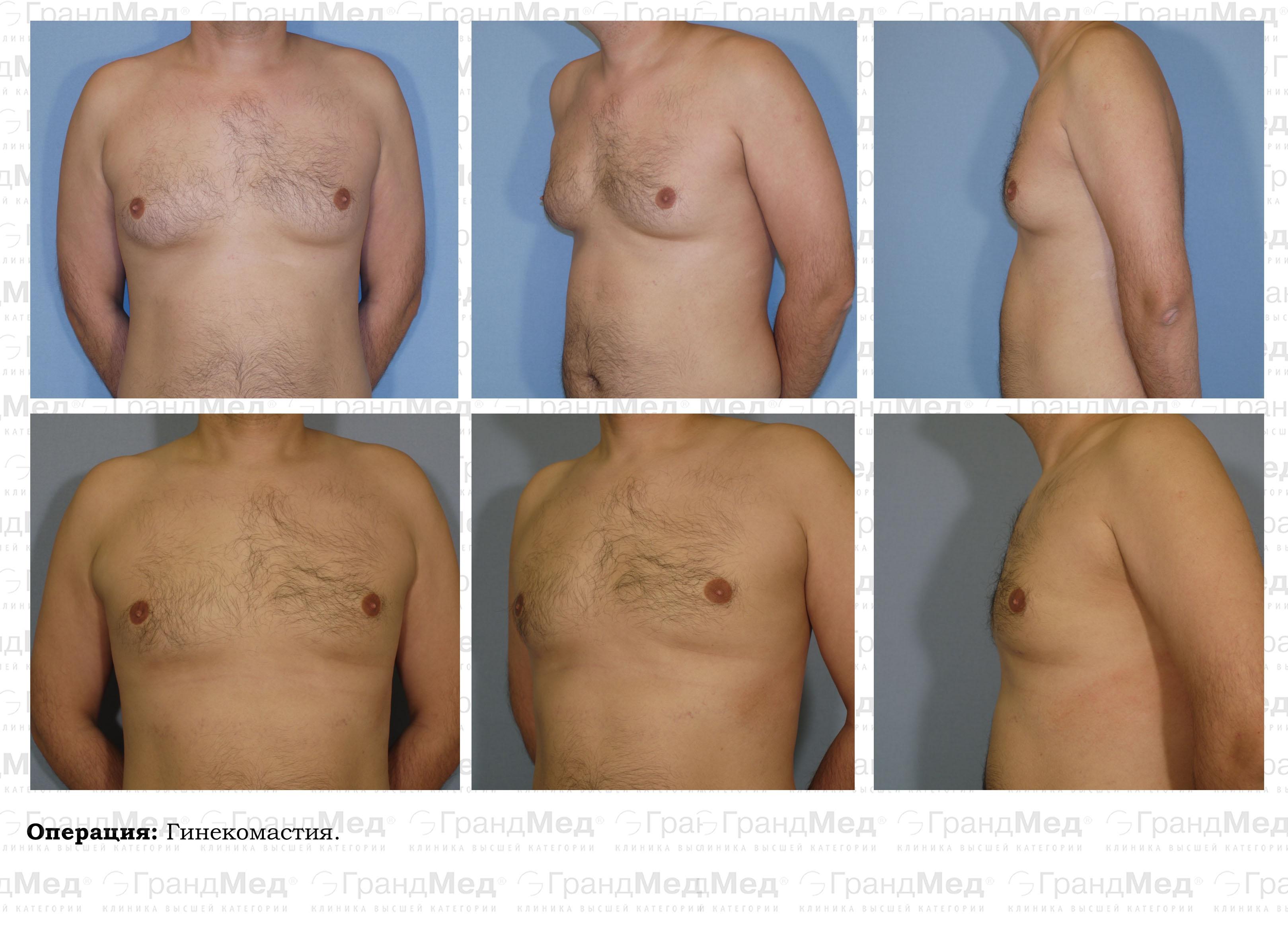 У кого сделать операцию по увеличению груди