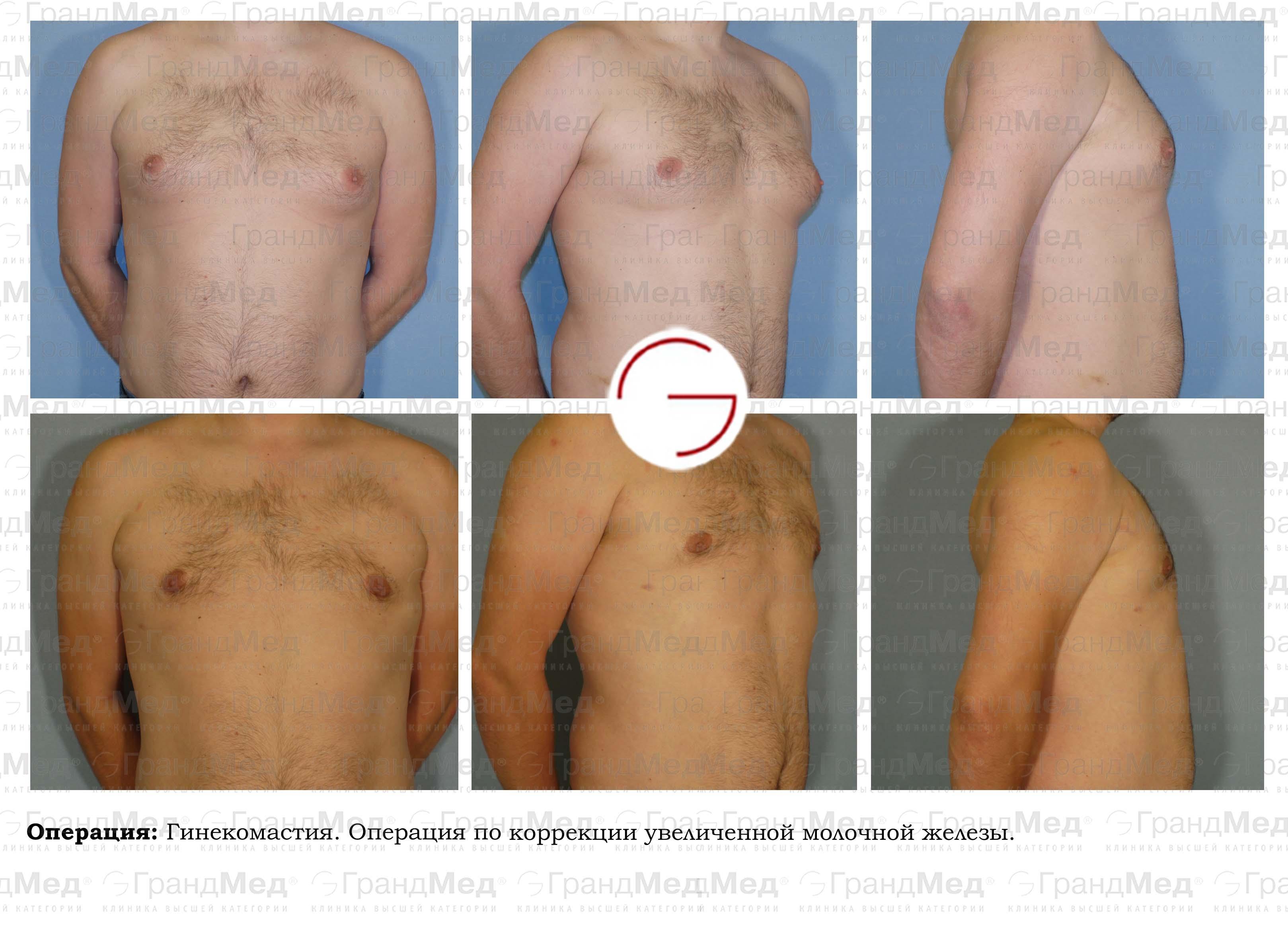intimnaya-plasticheskaya-hirurgiya-otzivi
