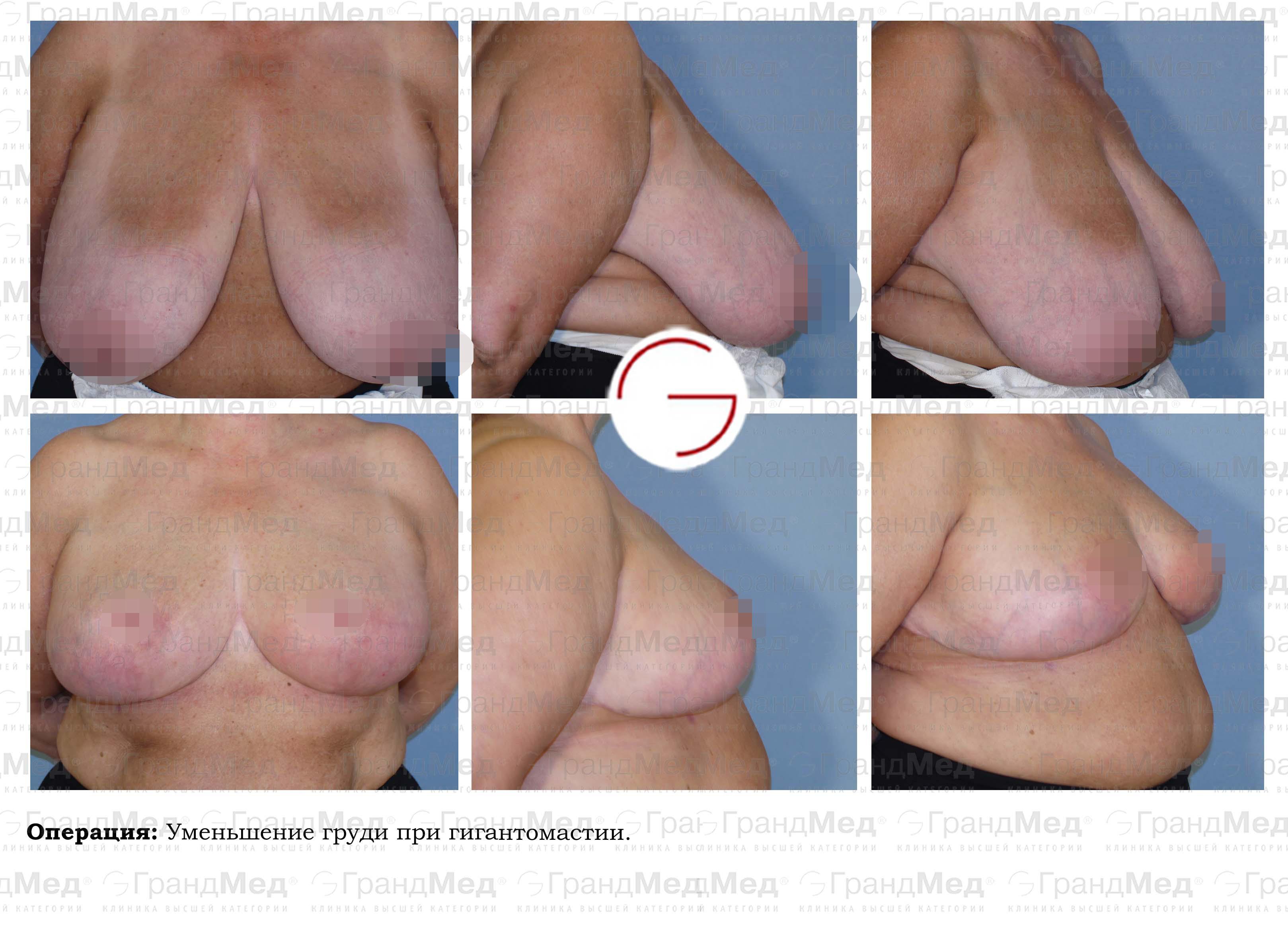 Отрицательные отзывы о креме для увеличения бюста