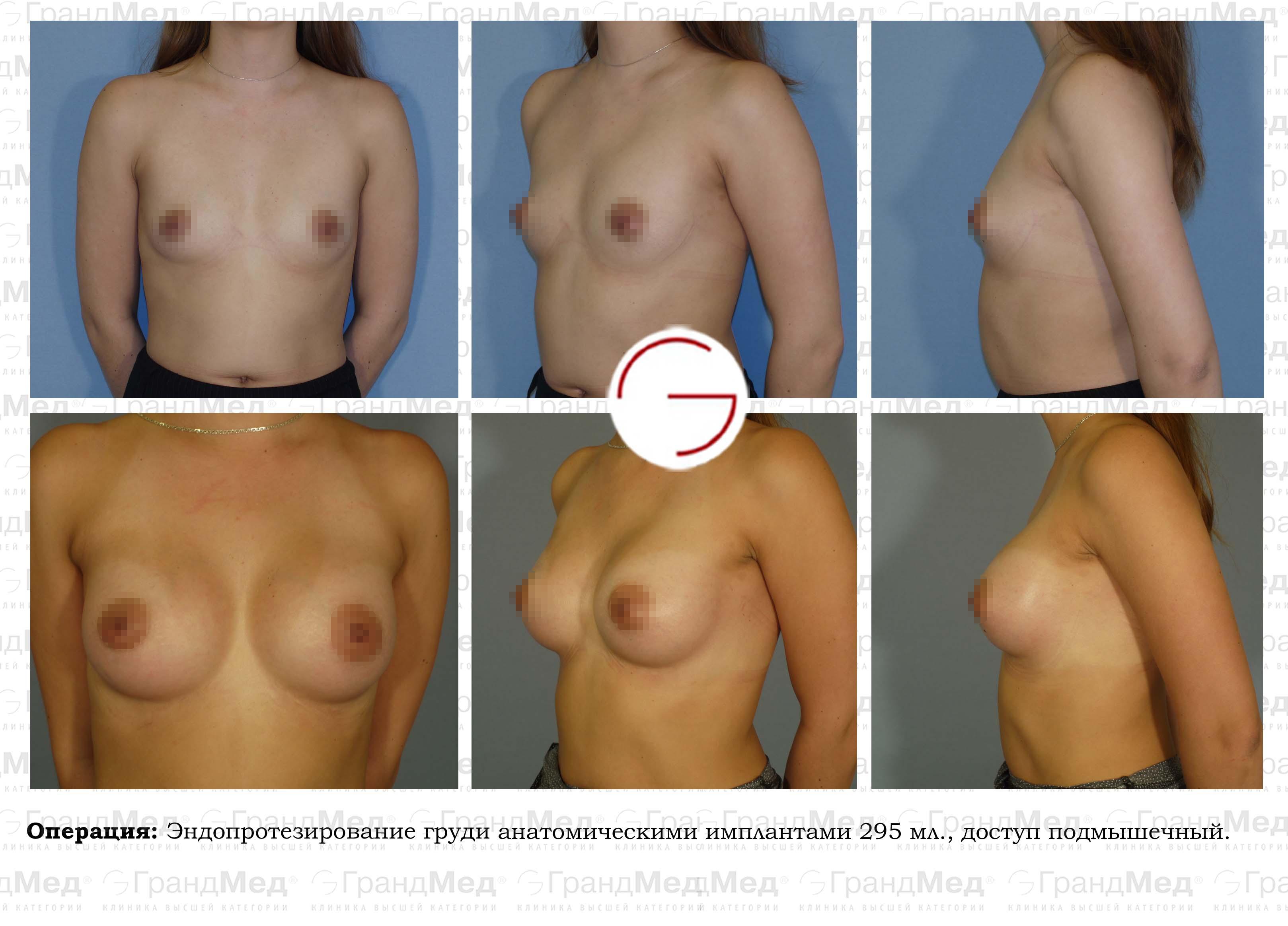 увеличение груди в краснодаре форум