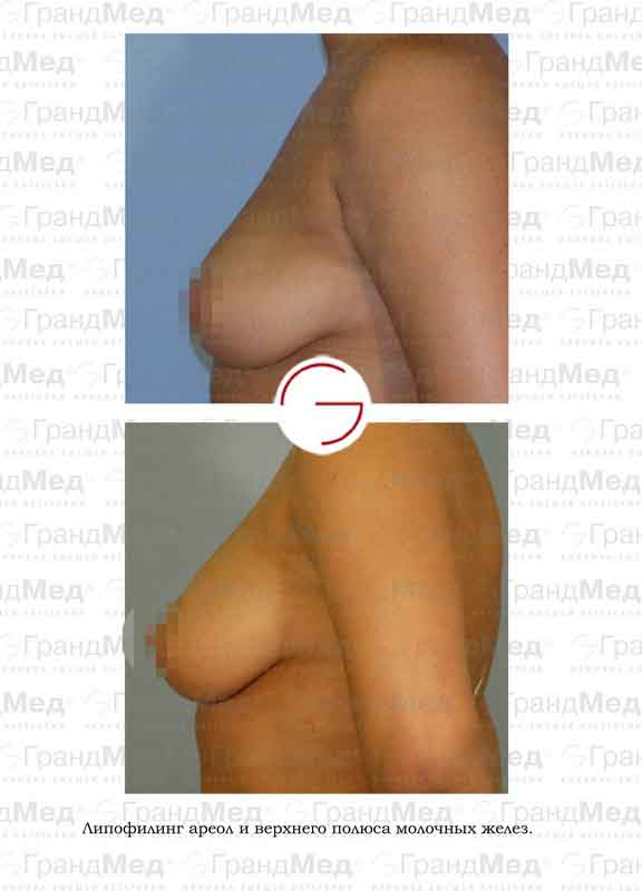 увеличение груди в ярославле