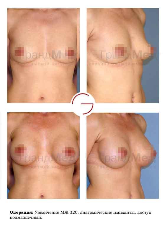 Увеличение груди без операции в москве