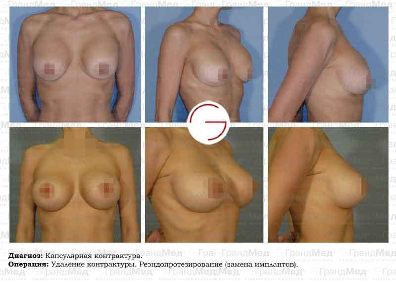 увеличение груди жиром фото