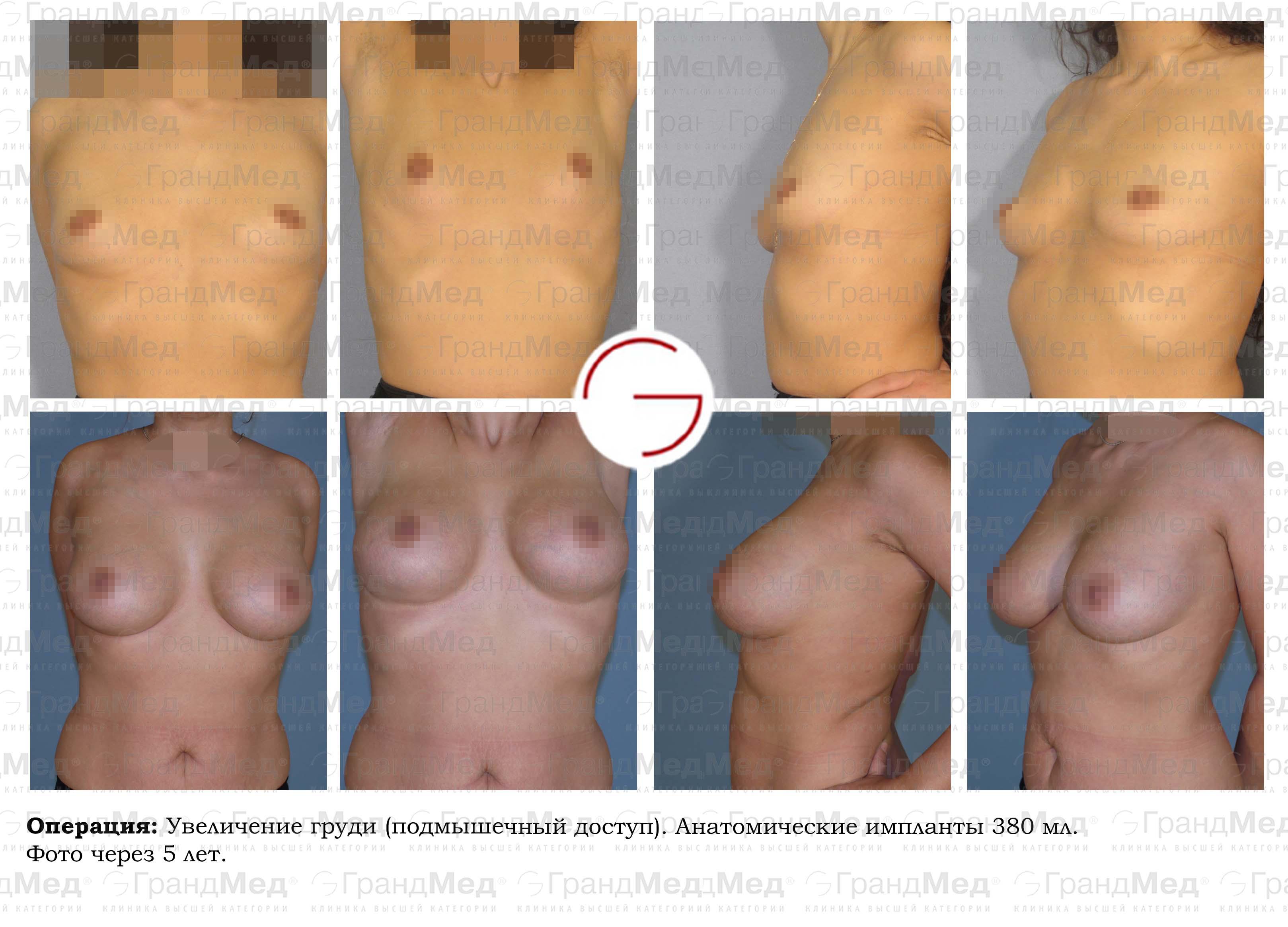 Пластическая хирургия по увеличению груди цена