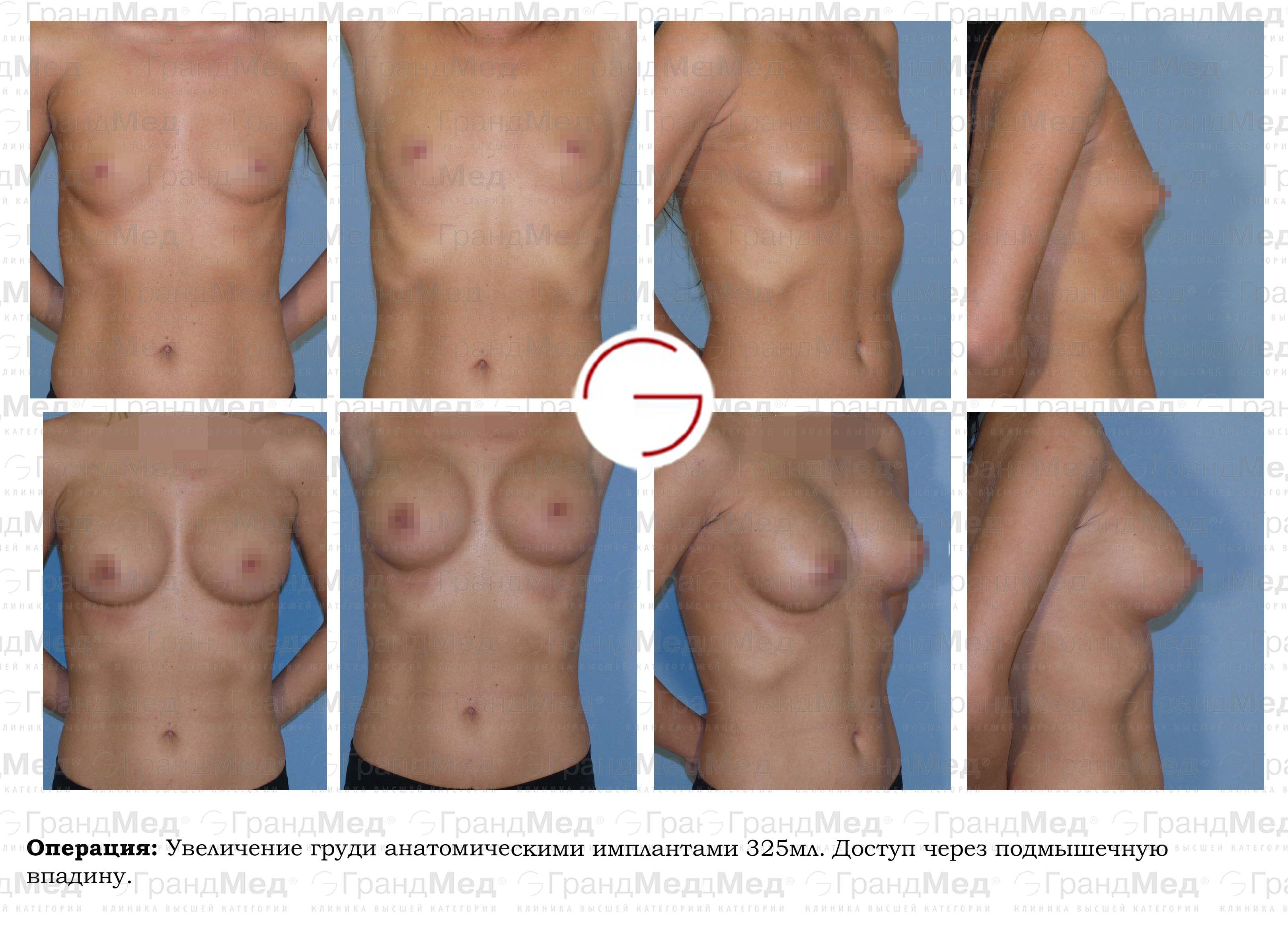 Пластика груди отзывы 5 фотография