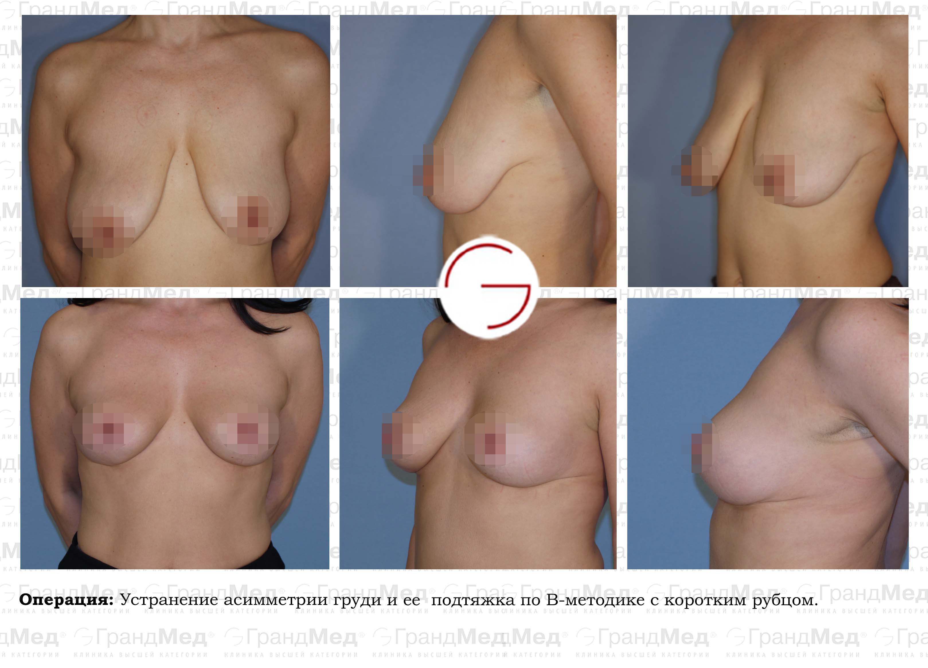 Операции об увеличении груди