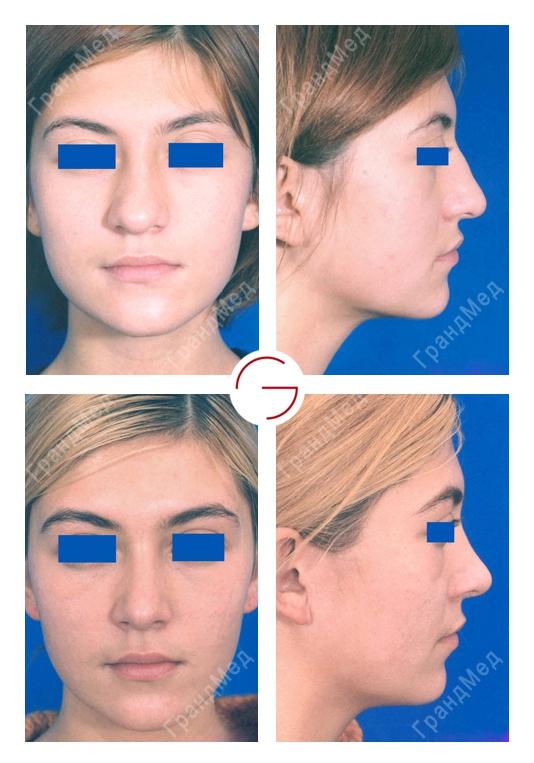 Ринопластика носа в минске отзывы