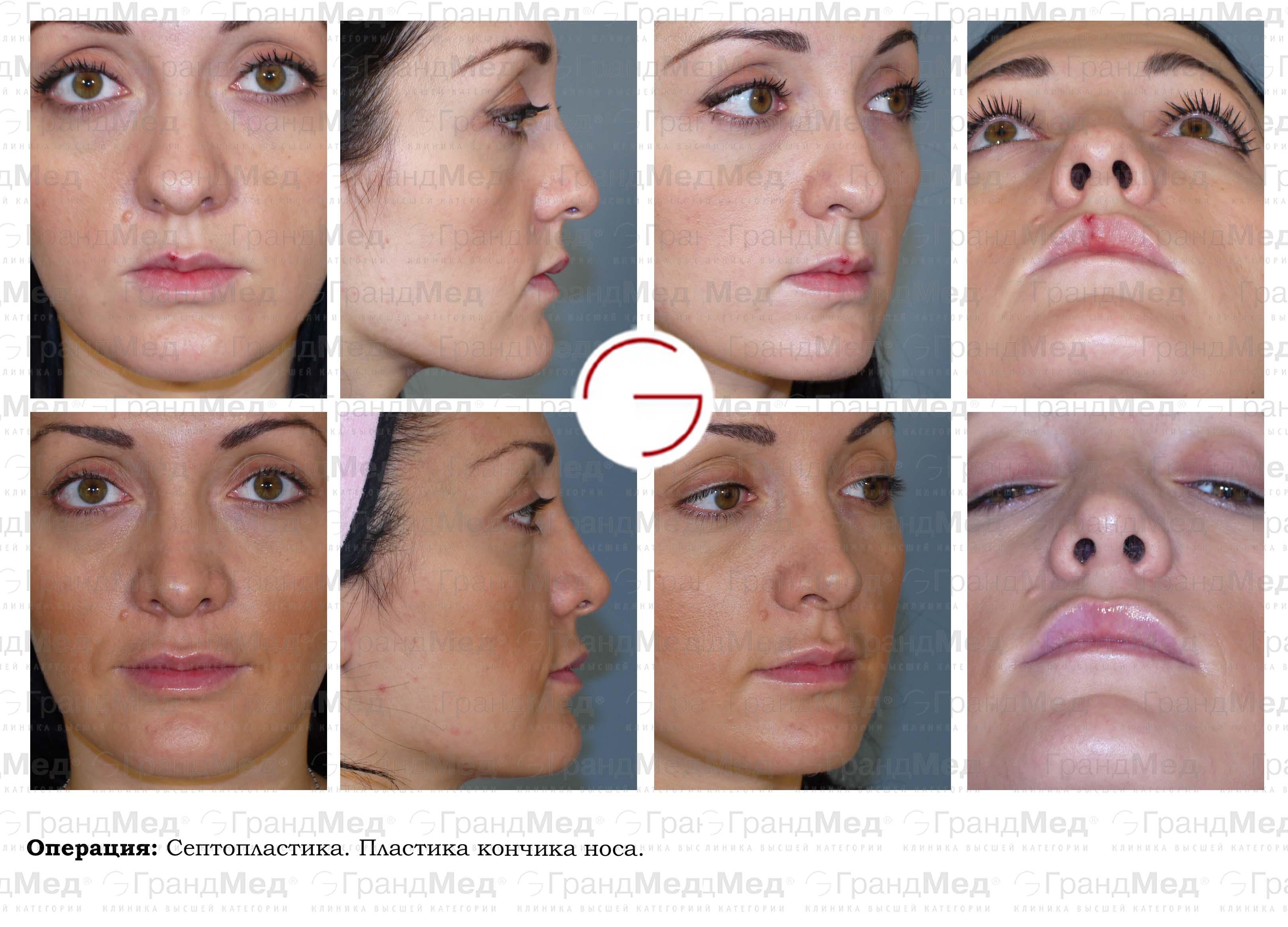 Как уменьшить нос без операции фото