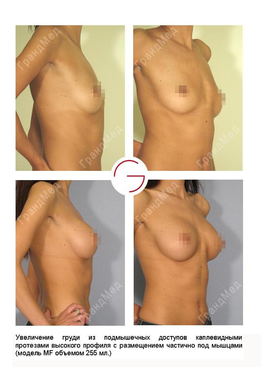 Подтянуть грудь на имплантах