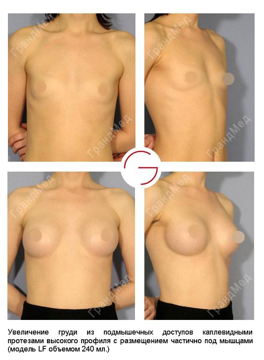 Нехирургическое увеличение груди 27 фотография