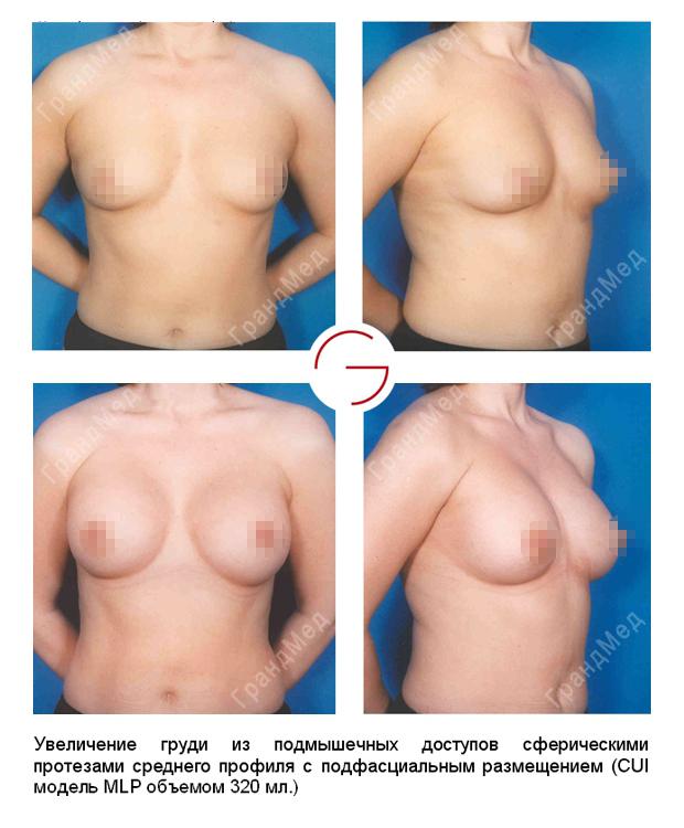 Нехирургическое увеличение груди 20 фотография