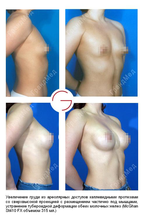 Силиконовые груди женщины