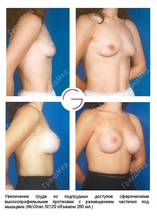увеличение груди в белоруссии