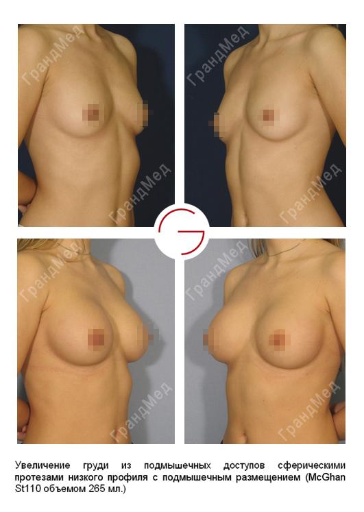 увеличение груди картинки