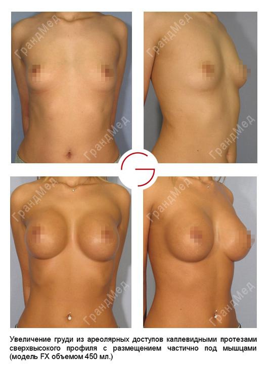 Операции по удалению грудных имплантов