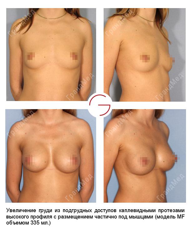 Отторжения имплантов грудных