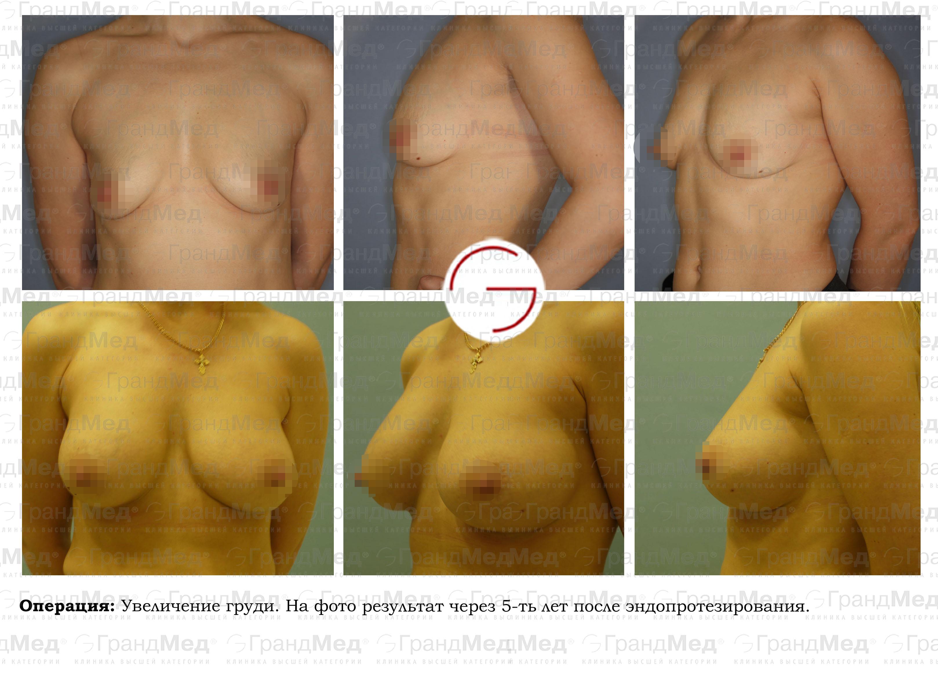 увеличение груди в запорожье