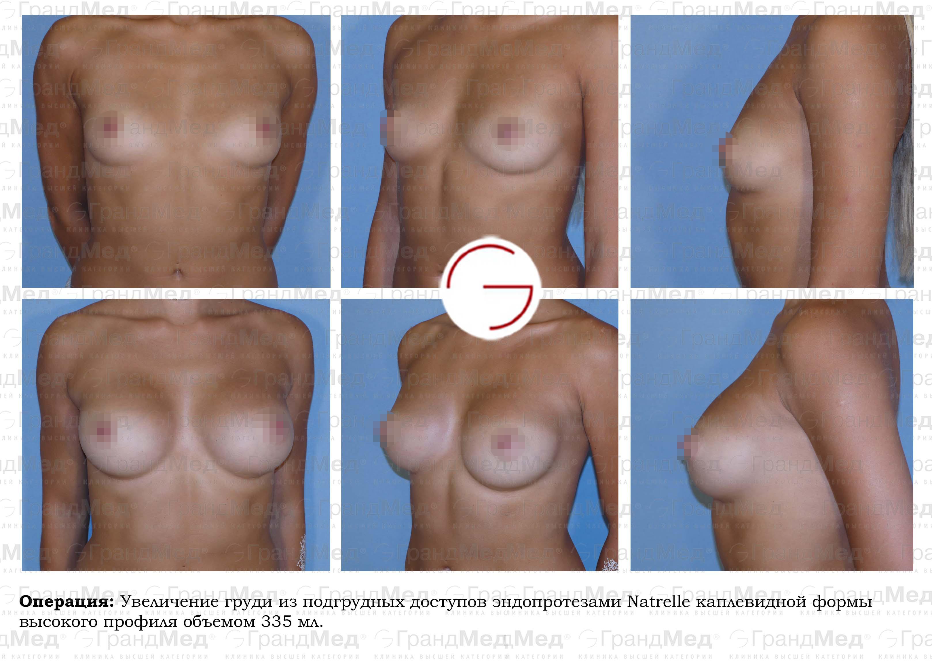 Дюфастон для увеличения груди отзывы