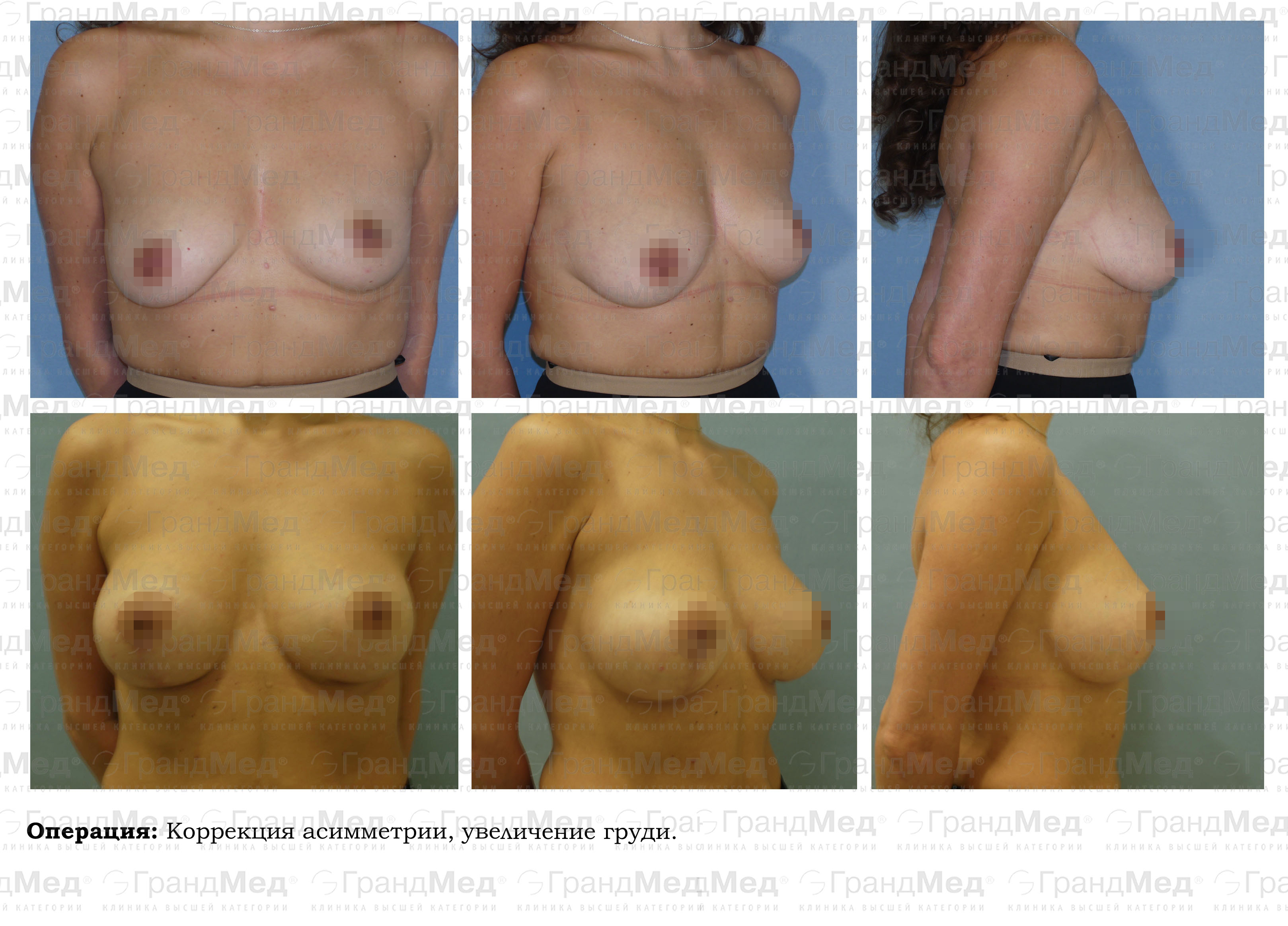 увеличение груди в домашних условиях отзывы