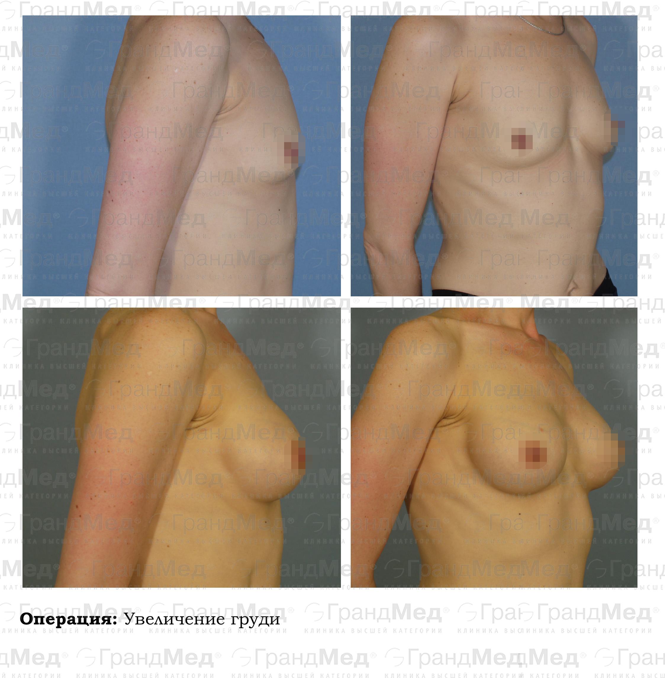Увеличение груди петербург 28 фотография