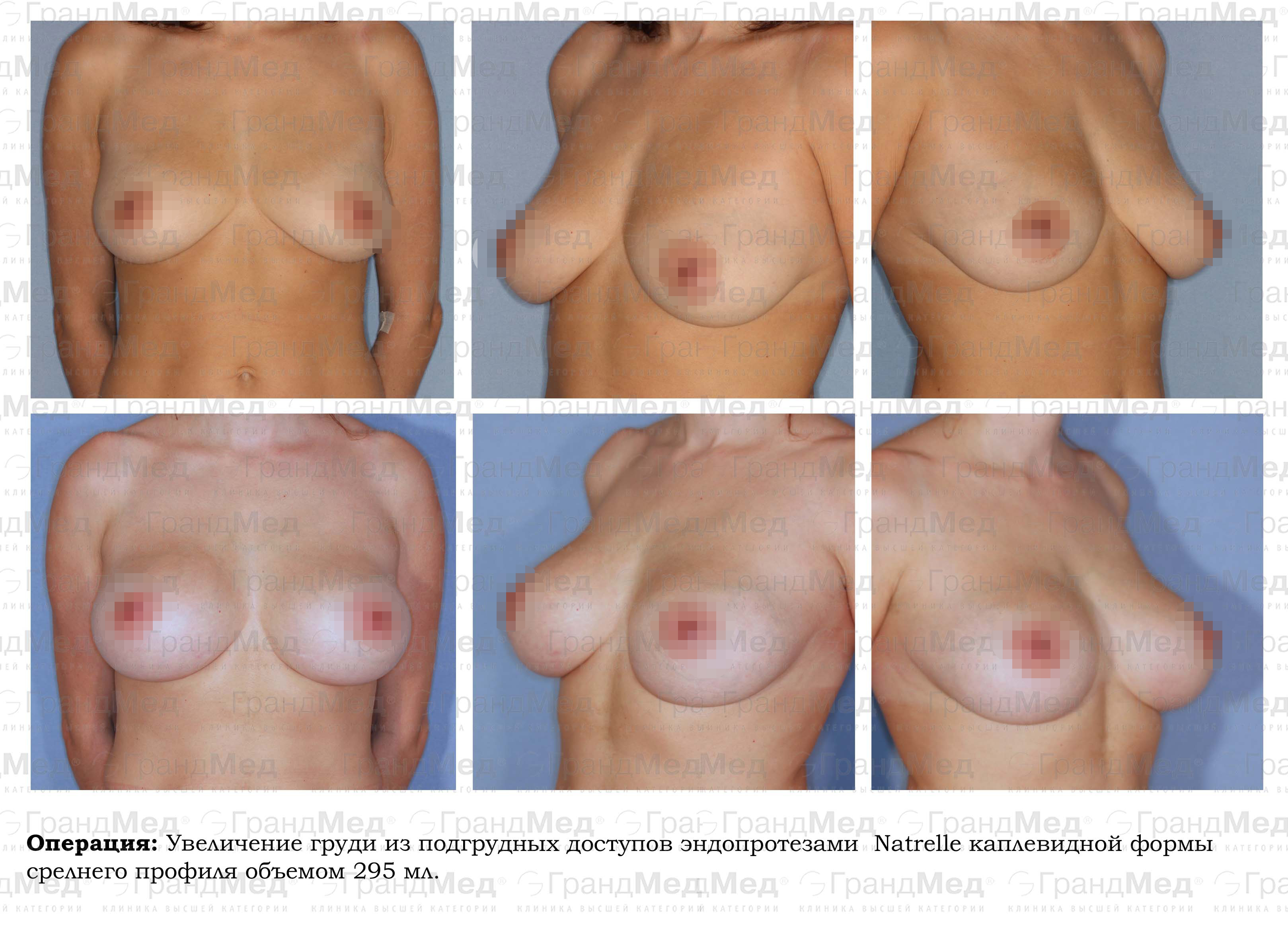 Увеличение груди без хирургии 31 фотография