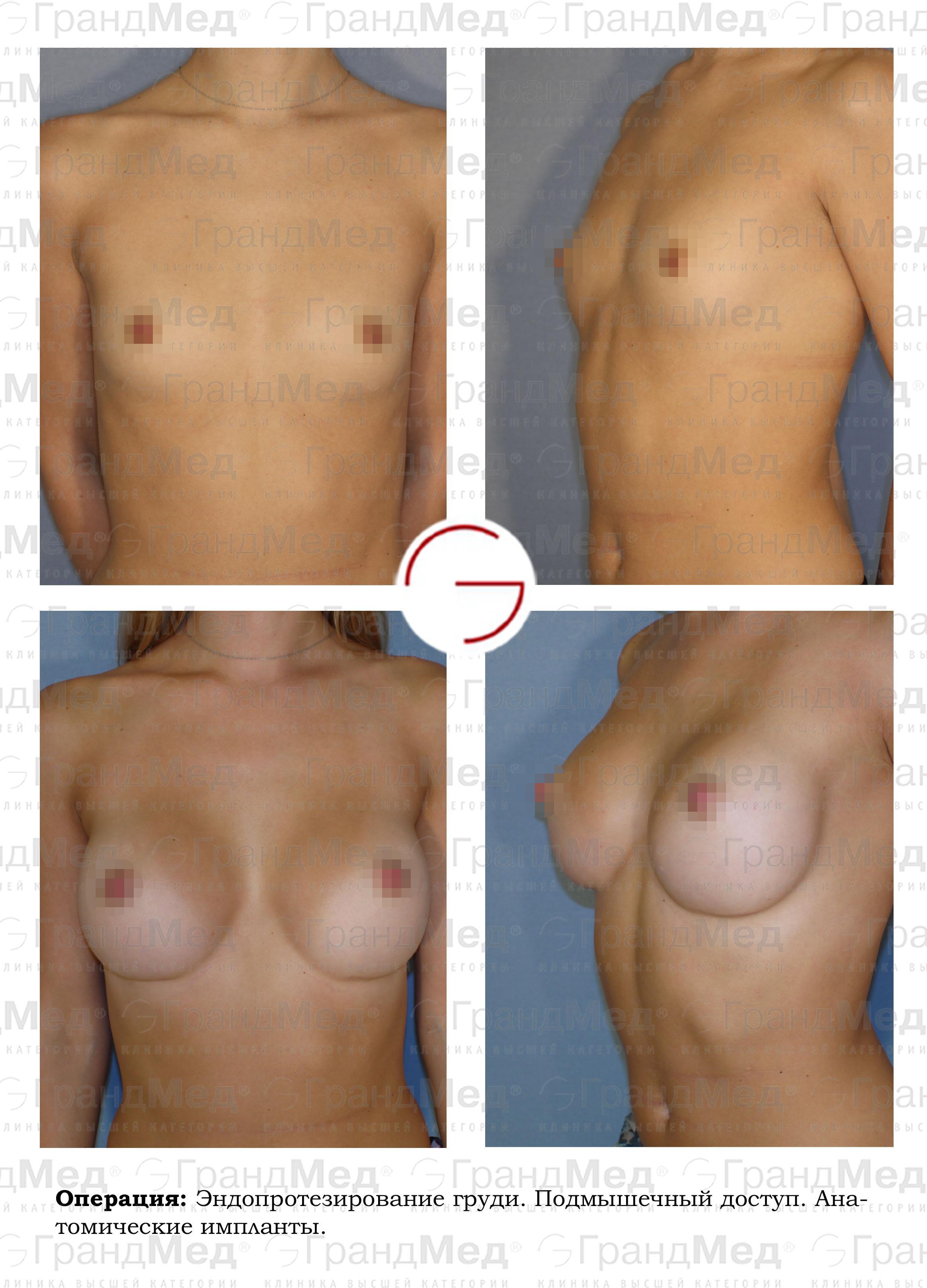 Голая маленькая острая грудь