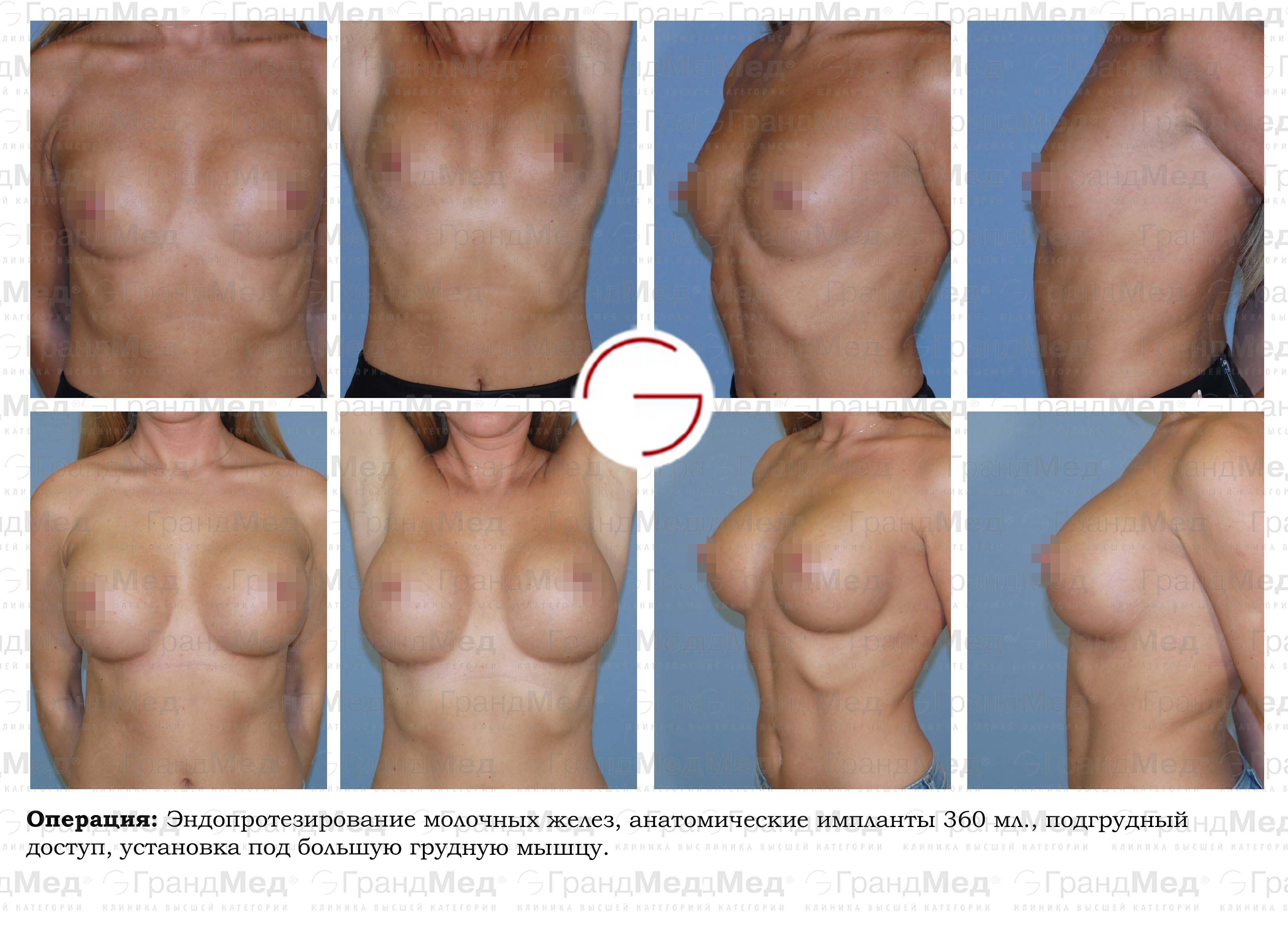 Пластические операции на половом члене увеличение протезирование
