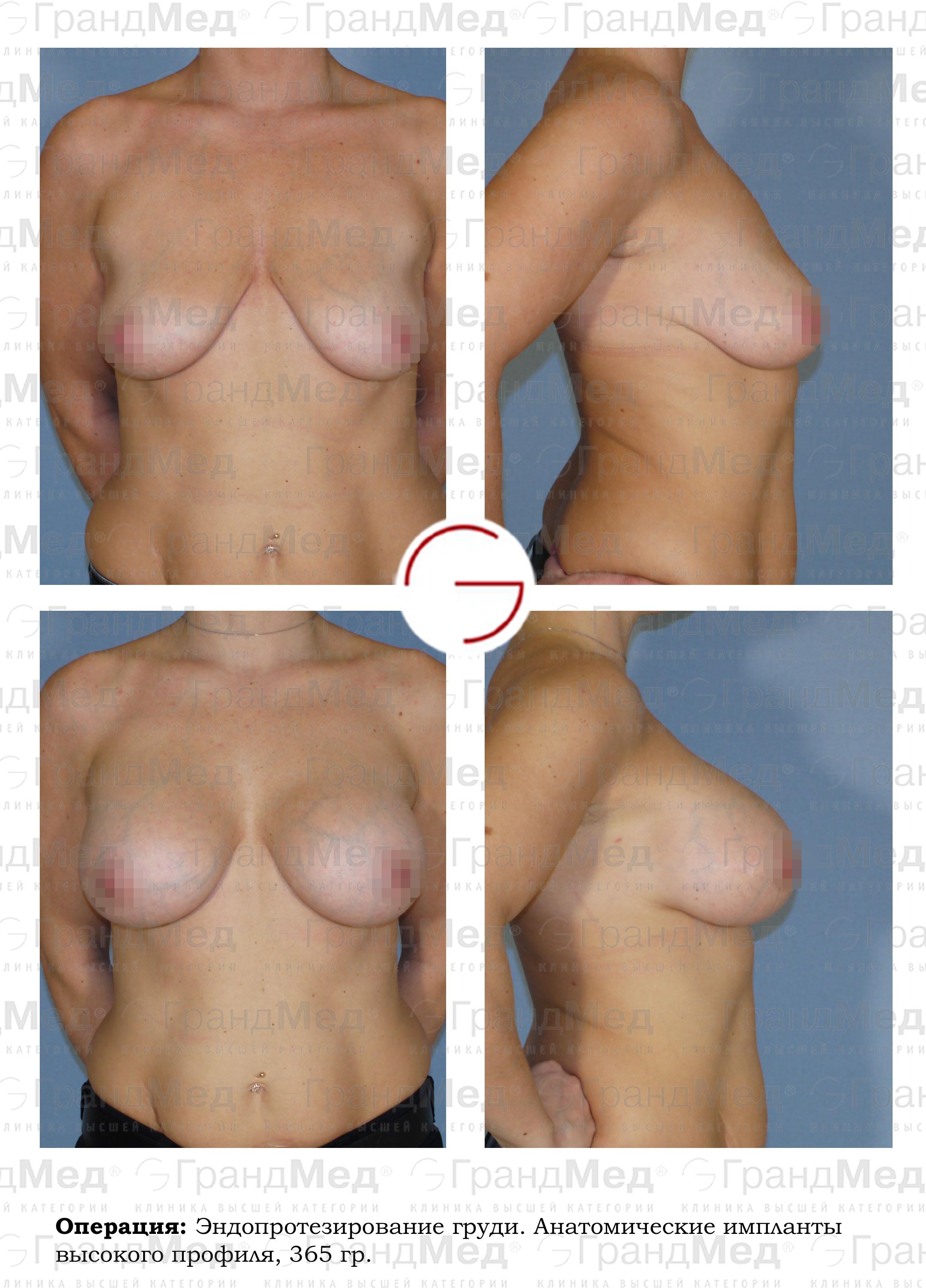 Био импланты в грудь