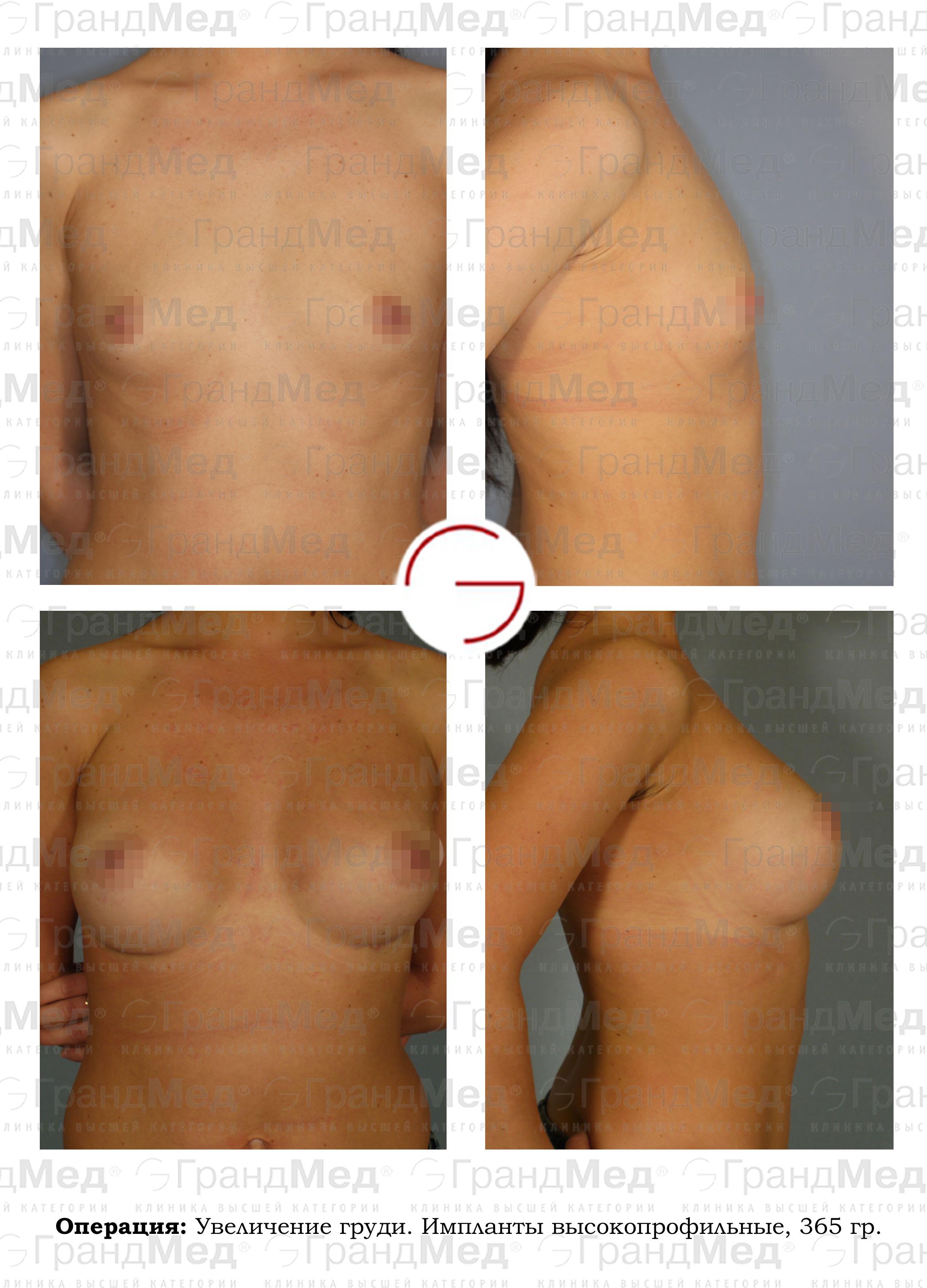 Крем с эстрогенами для груди