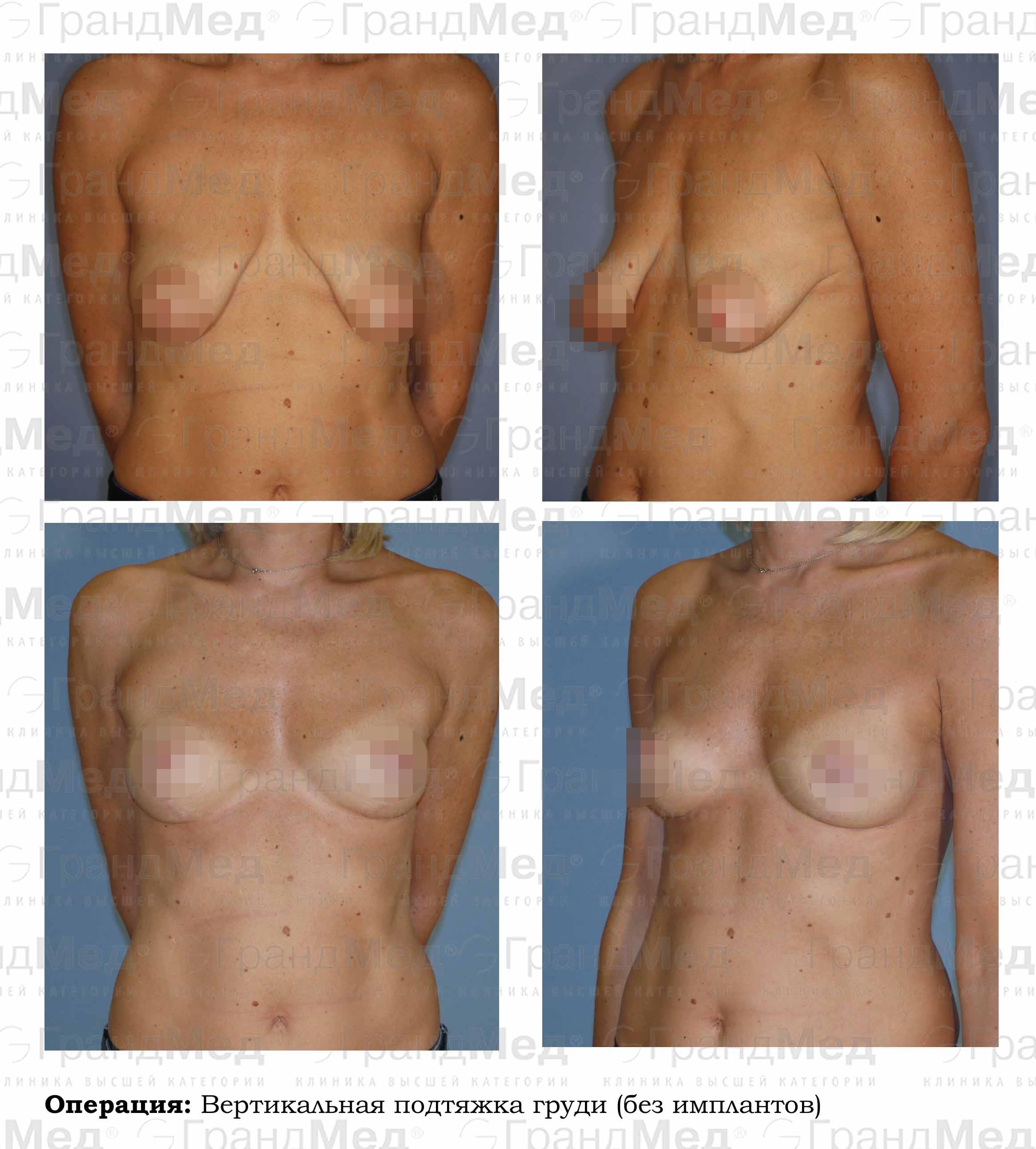 Мужчины об силиконовой груди
