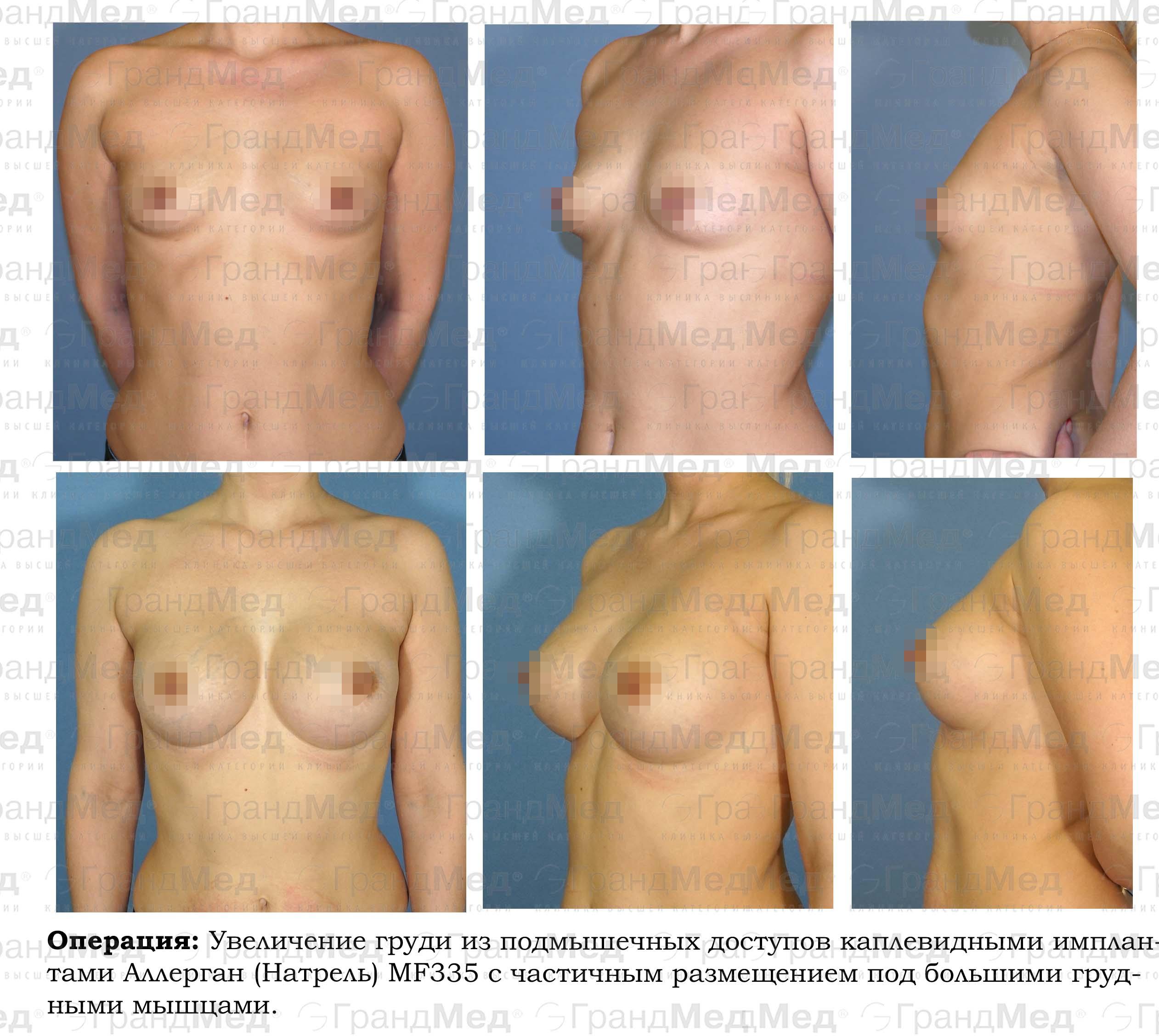 Операция по увеличению мужского достоинства стоимость процедуры