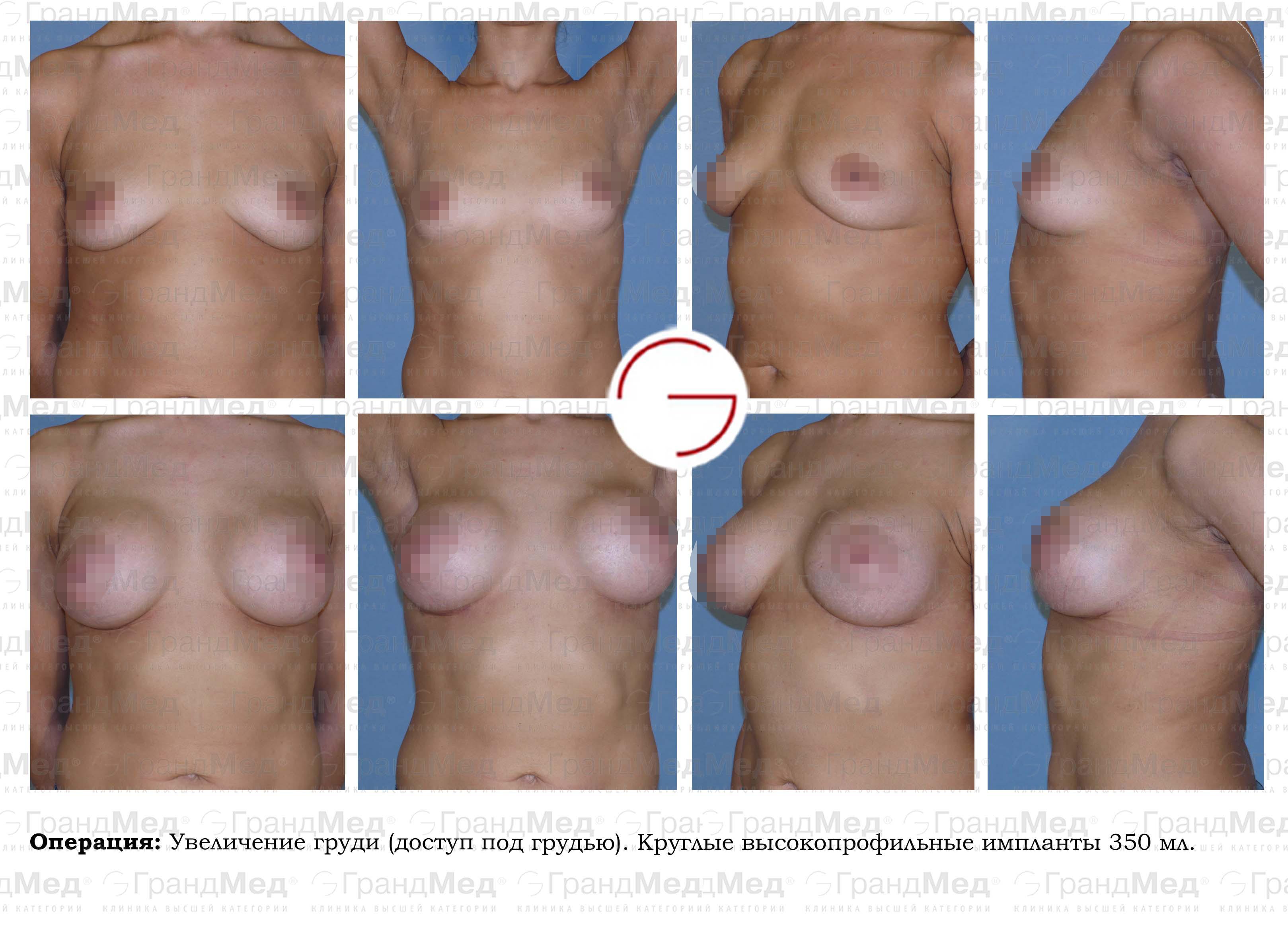 Увеличение груди петербург 4 фотография