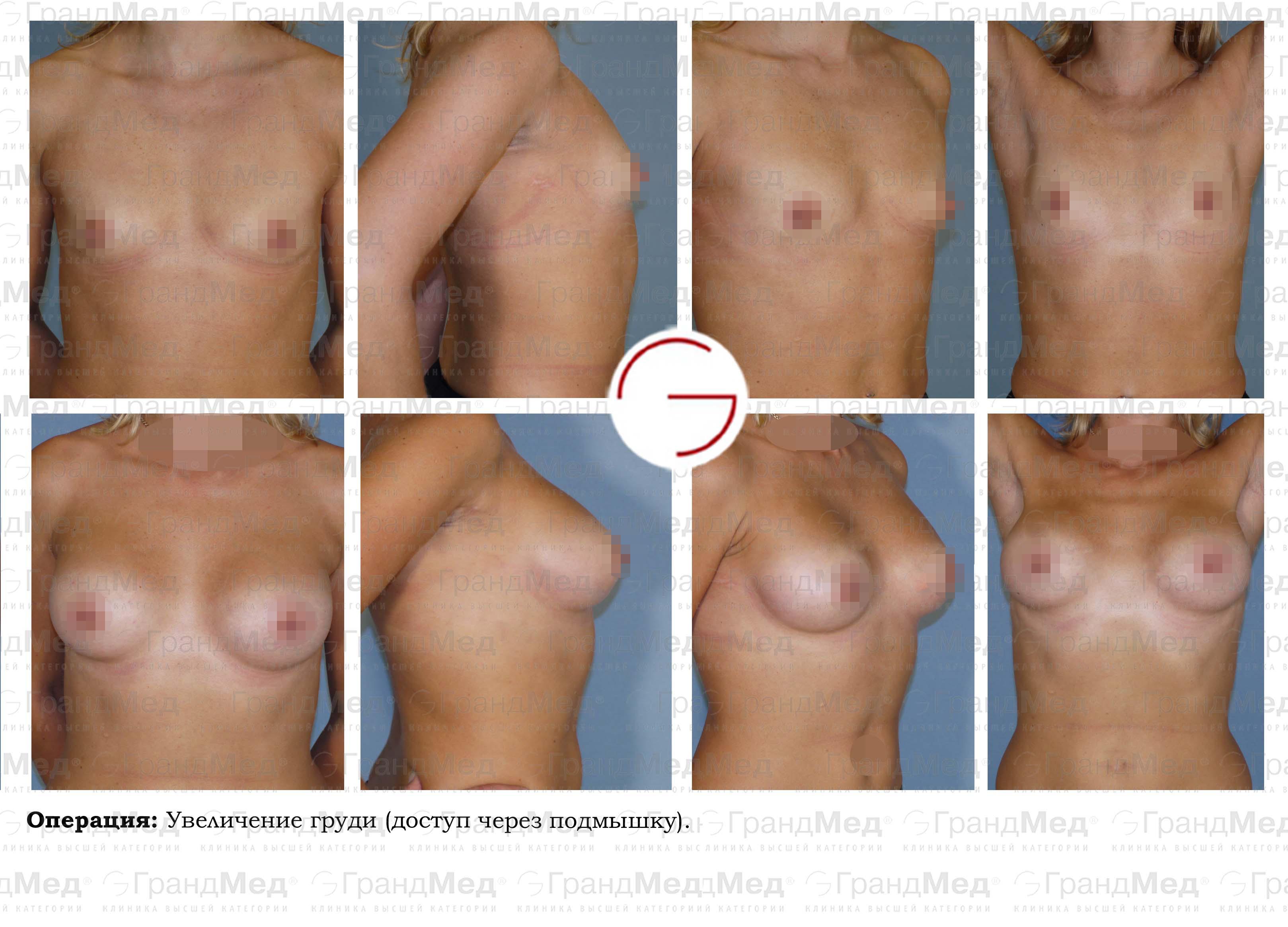 секс увеличивает грудь