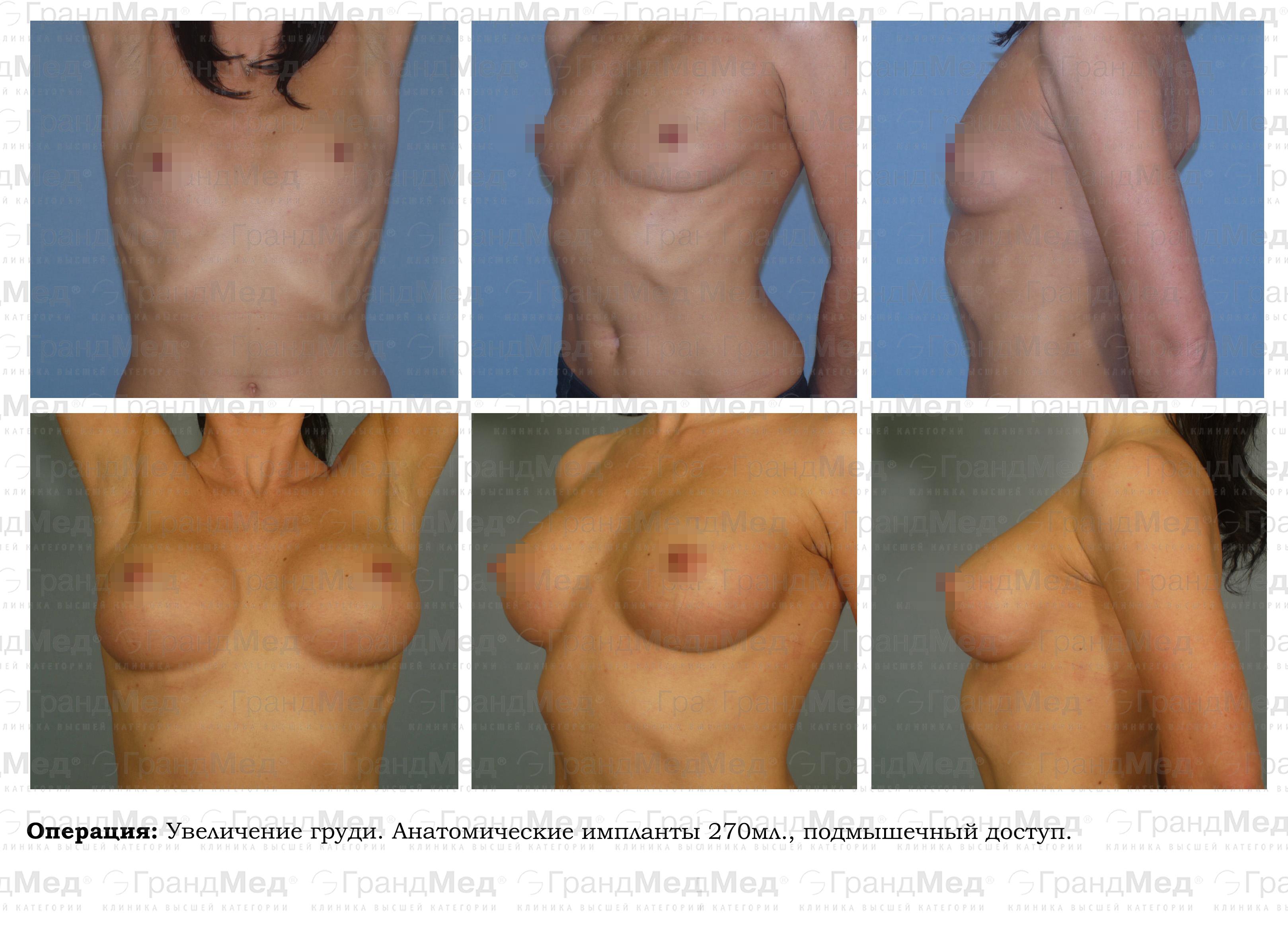 Увеличение груди петербург 19 фотография