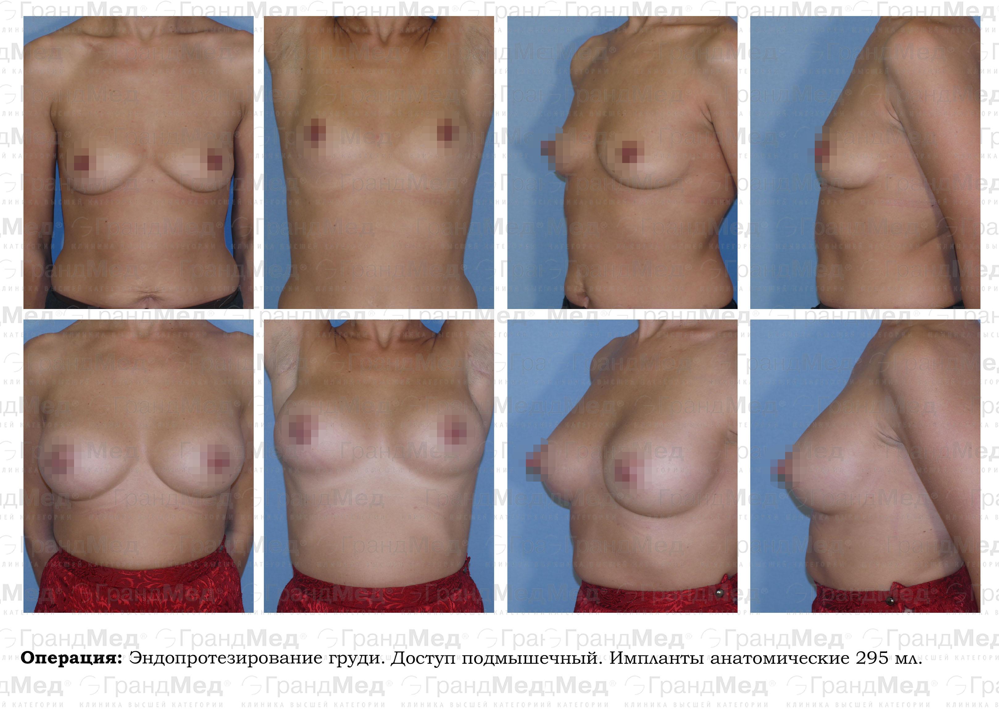 Отзывы об упражнениях для увеличения груди