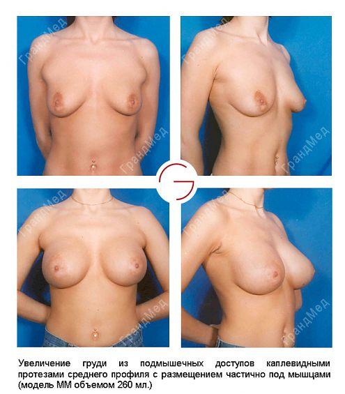 Увеличение груди. трансабдоминальный доступ (доступ через разрез на животе;