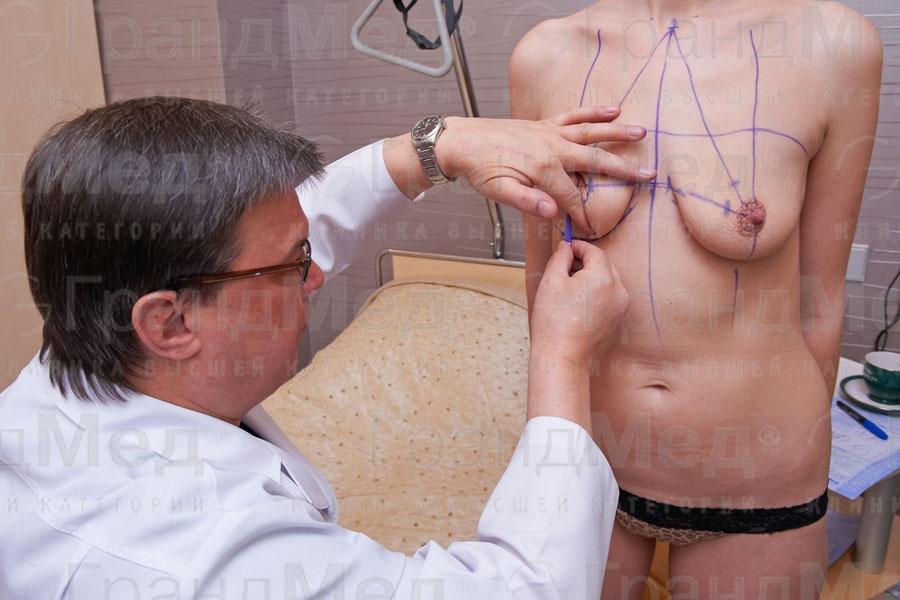 Когда снимают швы после маммопластики