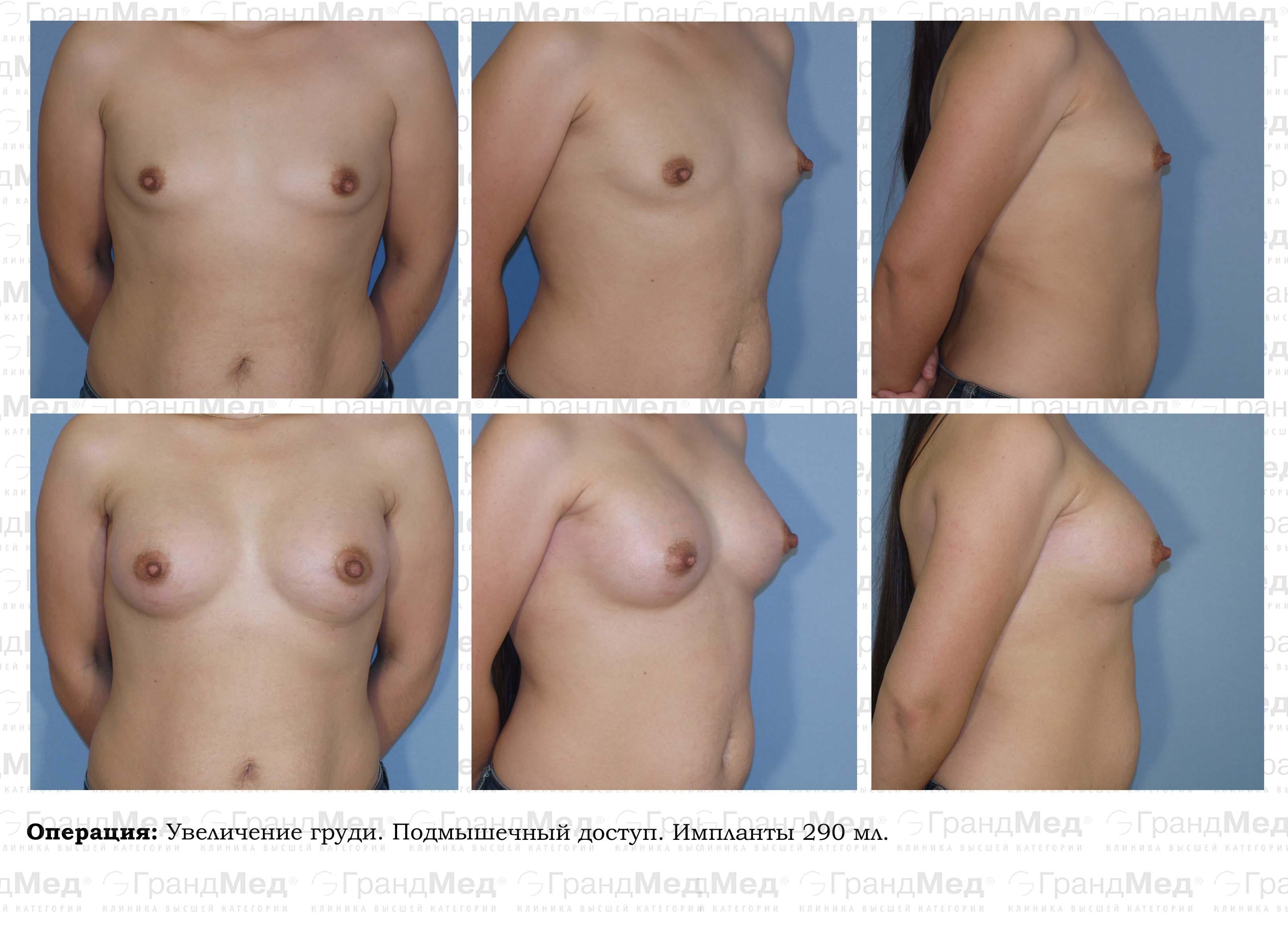 Увеличение груди в ГрандМед