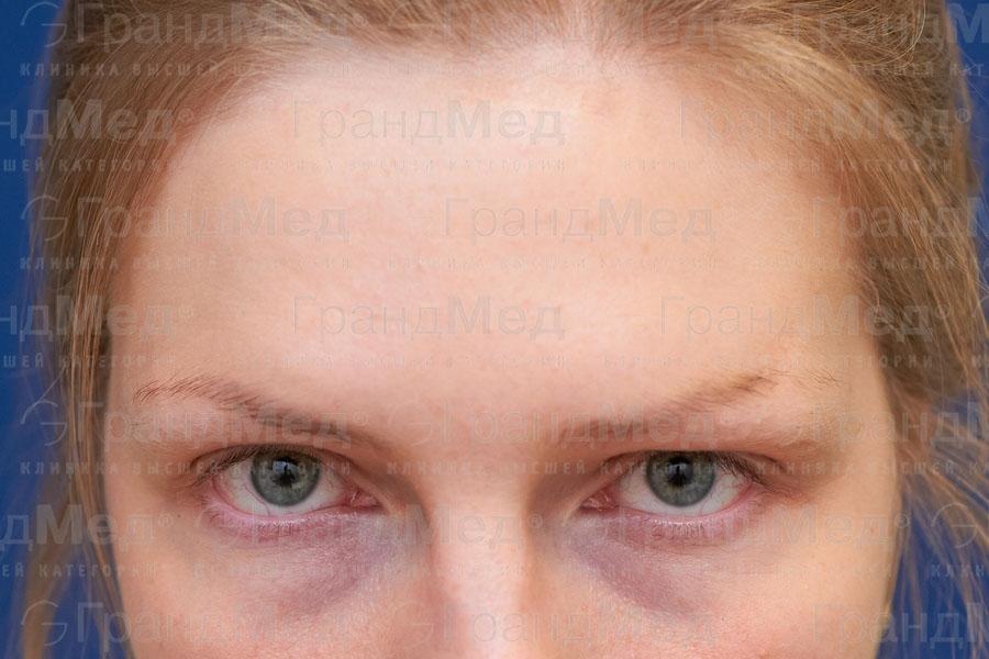 Перманентный макияж бровей в ГрандМед