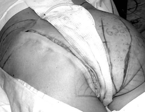 Операционный разрез на влагалище смотреть видео
