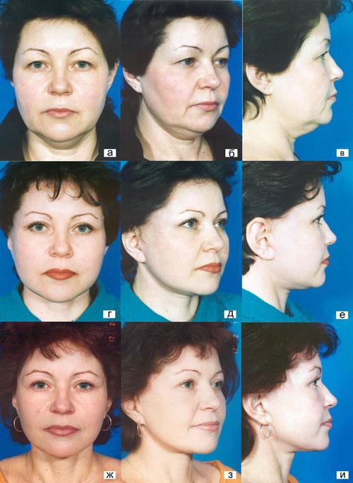 Тактические и технические особенности выполнения фейслифтинга у пациентов с полным лицом. Рис.10