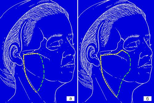 Тактические и технические особенности выполнения фейслифтинга у пациентов с полным лицом. Рис.3