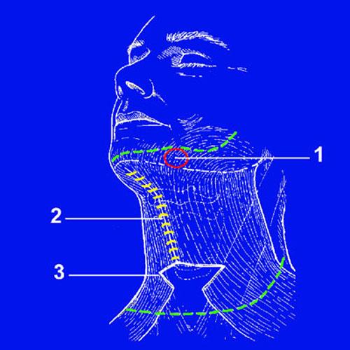 Тактические и технические особенности выполнения фейслифтинга у пациентов с полным лицом. Рис.4