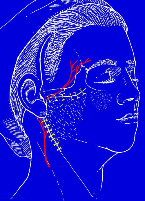 Тактические и технические особенности выполнения фейслифтинга у пациентов с полным лицом. Рис.5