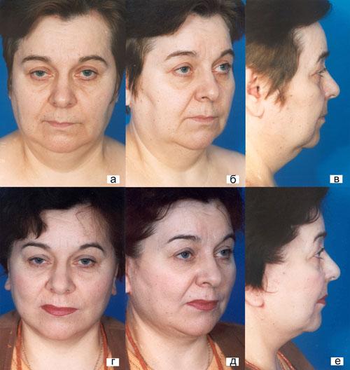 Тактические и технические особенности выполнения фейслифтинга у пациентов с полным лицом. Рис.8