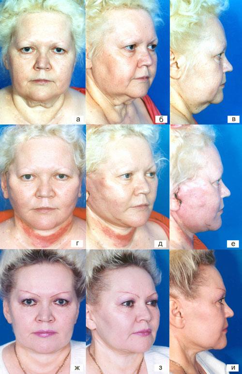 Тактические и технические особенности выполнения фейслифтинга у пациентов с полным лицом. Рис.9
