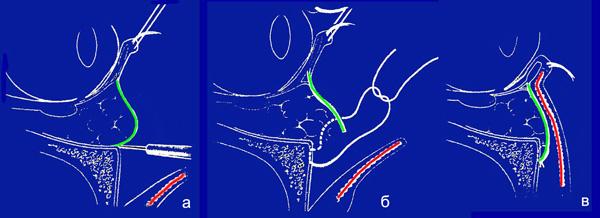 Объемсохраняющие методы пластики нижних век в омолаживающей хирургии окологлазничной области. Рис.3